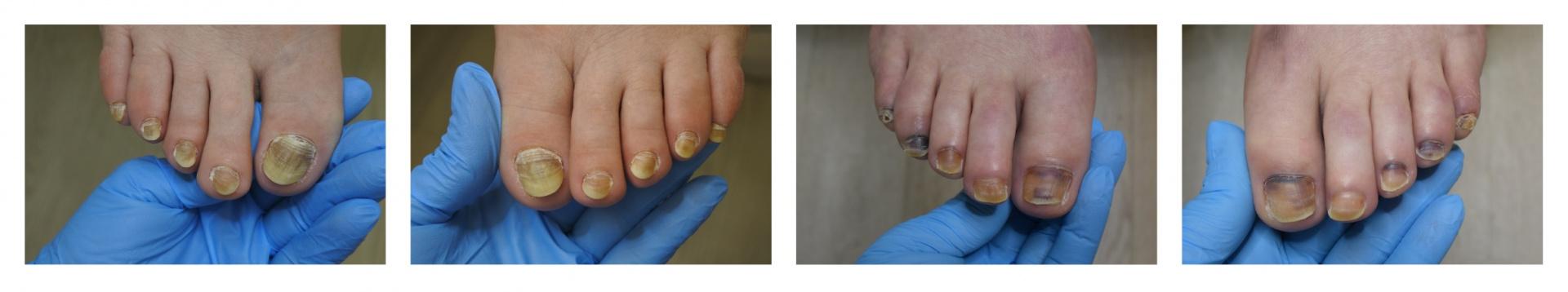 Примеры поражения ногтевых пластин в процессе лечения онкологических заболеваний.jpg