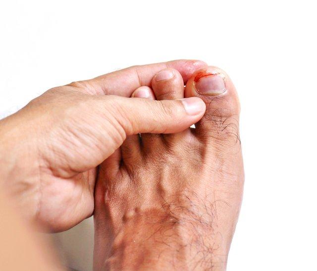 травма ногтя большого пальца ноги