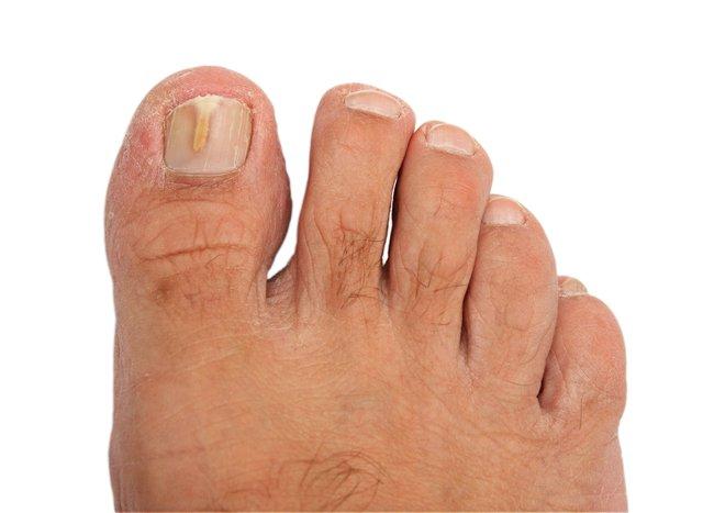 микоз стопы симптомы лечение
